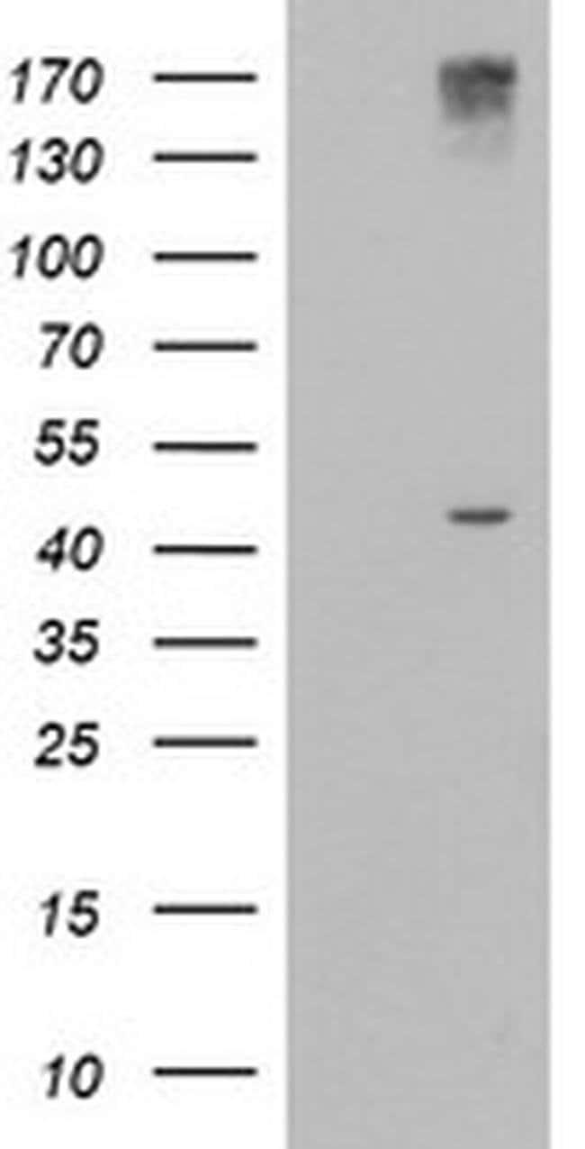AGPAT5 Mouse anti-Human, Clone: OTI5F4, liquid, TrueMAB  100 µL; Unconjugated