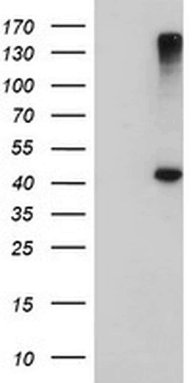 AGPAT5 Mouse anti-Human, Clone: OTI1D12, liquid, TrueMAB  100 µL;