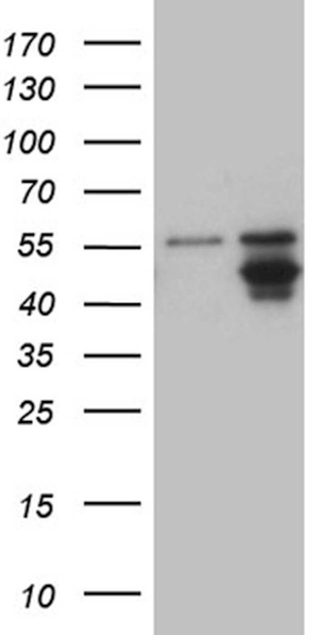 AGPAT9 Mouse anti-Human, Clone: OTI3G3, lyophilized, TrueMAB  100 µg;