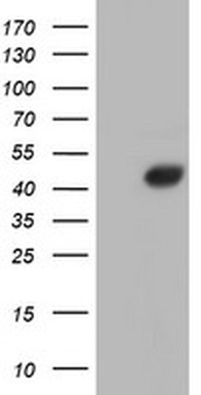 AHSG Mouse anti-Human, Clone: OTI2H2, liquid, TrueMAB  30 µL; Unconjugated