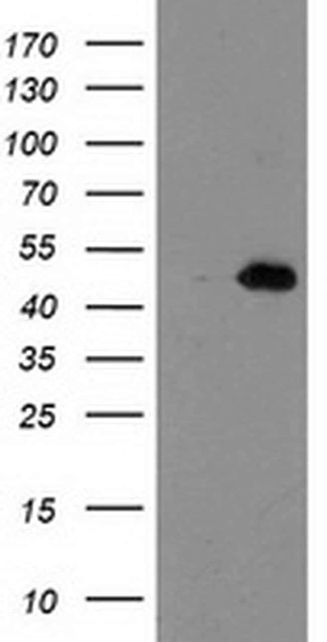 AIPL1 Mouse anti-Human, Clone: OTI3B4, liquid, TrueMAB  100 µL; Unconjugated