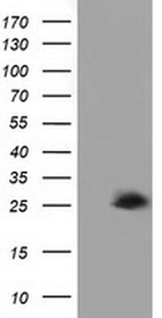 AK3 Mouse anti-Human, Clone: OTI4C4, liquid, TrueMAB  100 µL; Unconjugated