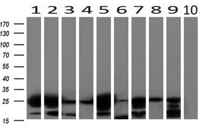 AK4 Mouse anti-Canine, Human, Mouse, Rat, Clone: OTI3B1, liquid, TrueMAB
