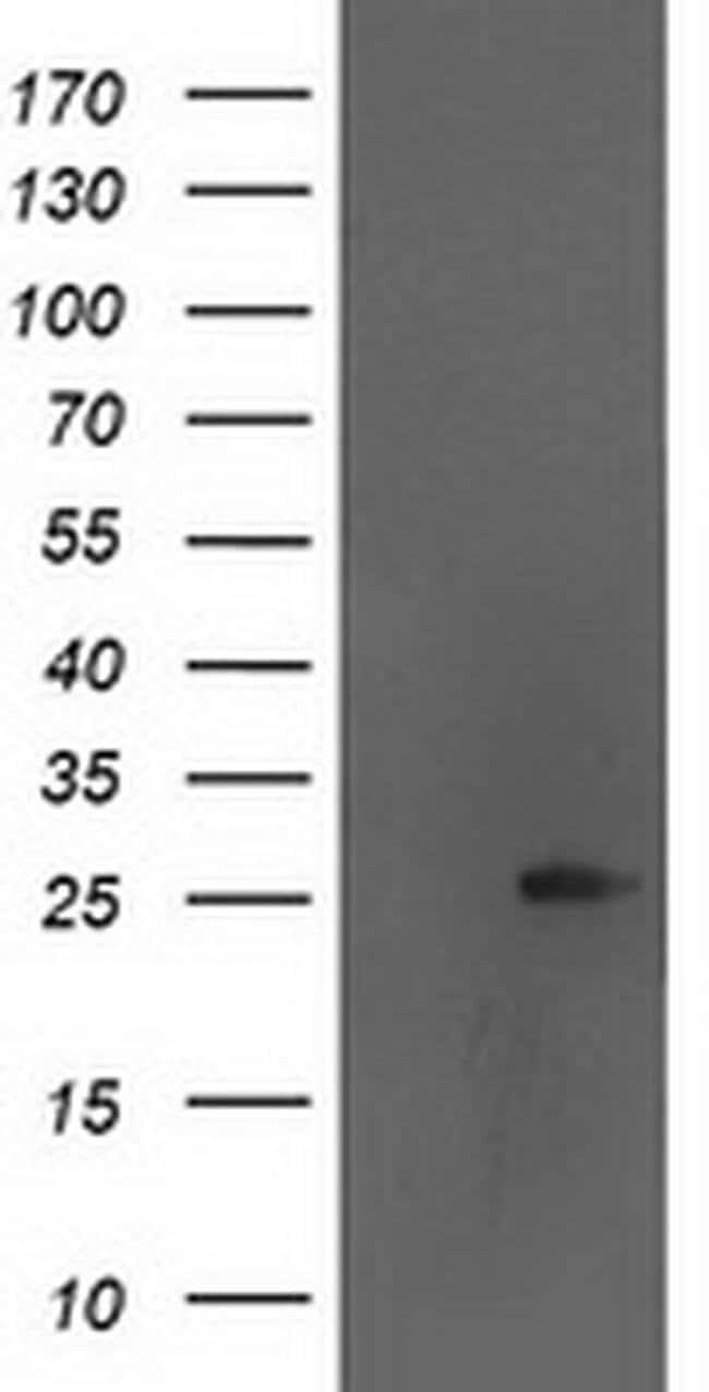 AK4 Mouse anti-Human, Clone: OTI1H1, liquid, TrueMAB  100 µL; Unconjugated