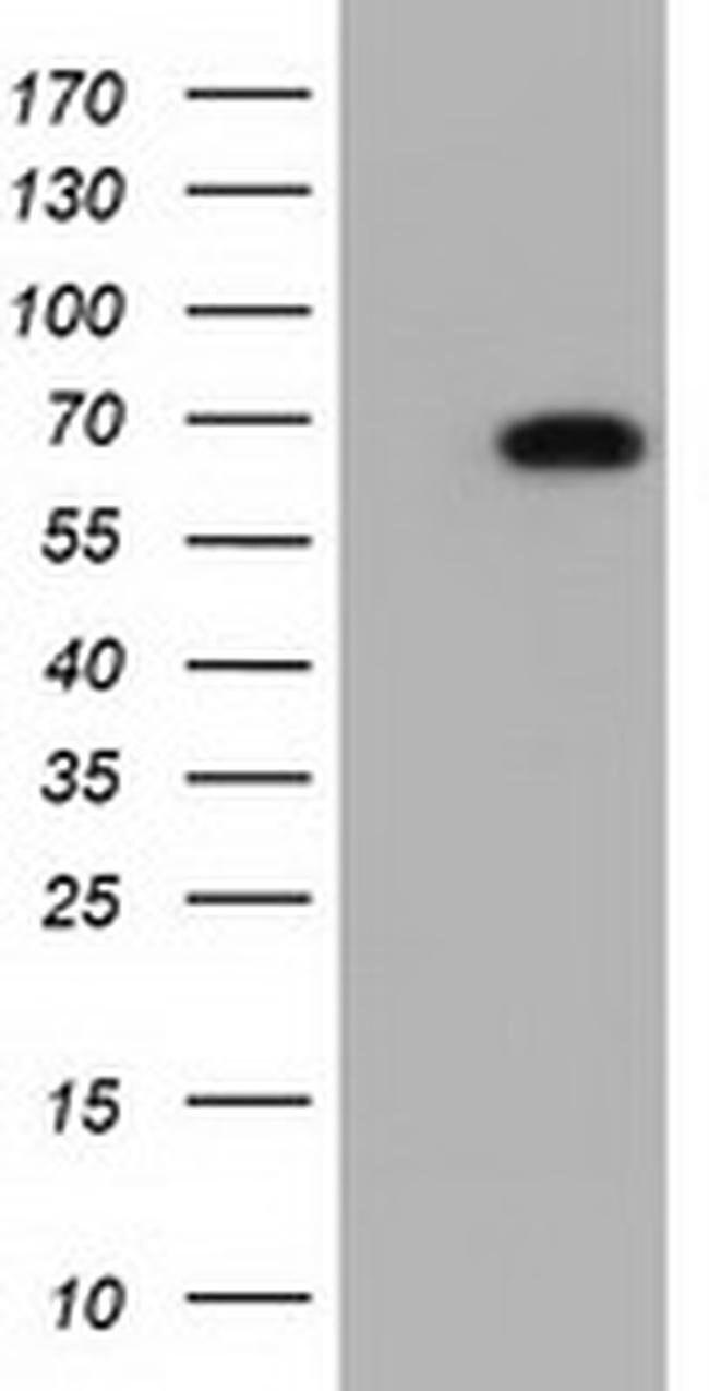 AK5 Mouse anti-Human, Clone: OTI1C5, liquid, TrueMAB  100 µL; Unconjugated