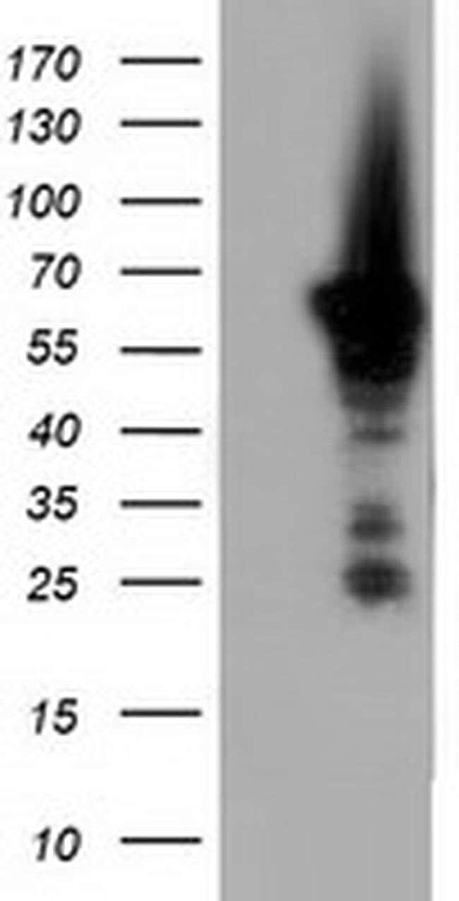 AK5 Mouse anti-Human, Clone: OTI2G4, liquid, TrueMAB  100 µL; Unconjugated