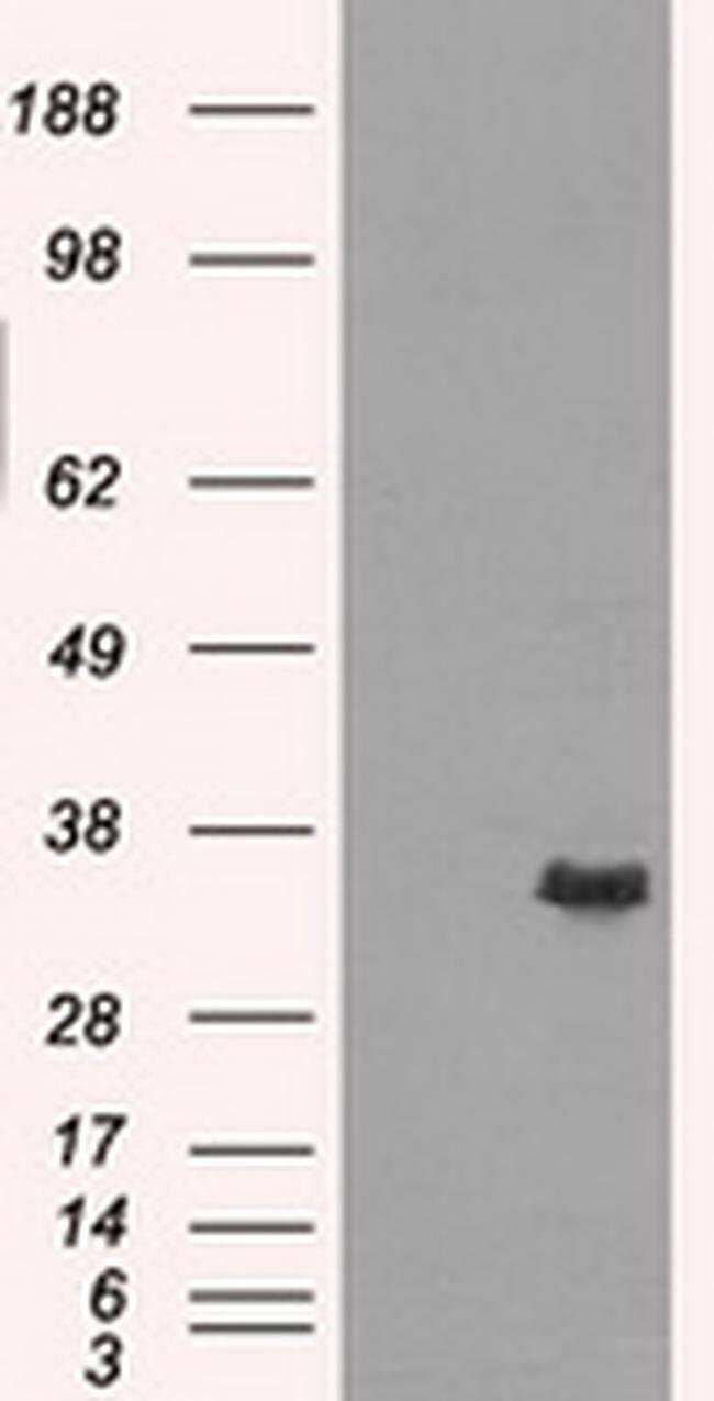 AKR1A1 Mouse anti-Human, Clone: OTI8E12, liquid, TrueMAB  100 µL;