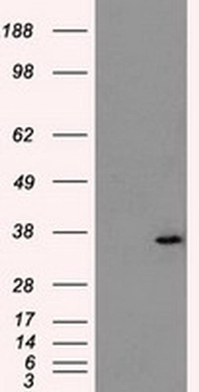 AKR1A1 Mouse anti-Human, Clone: OTI10E11, liquid, TrueMAB  100 µL;