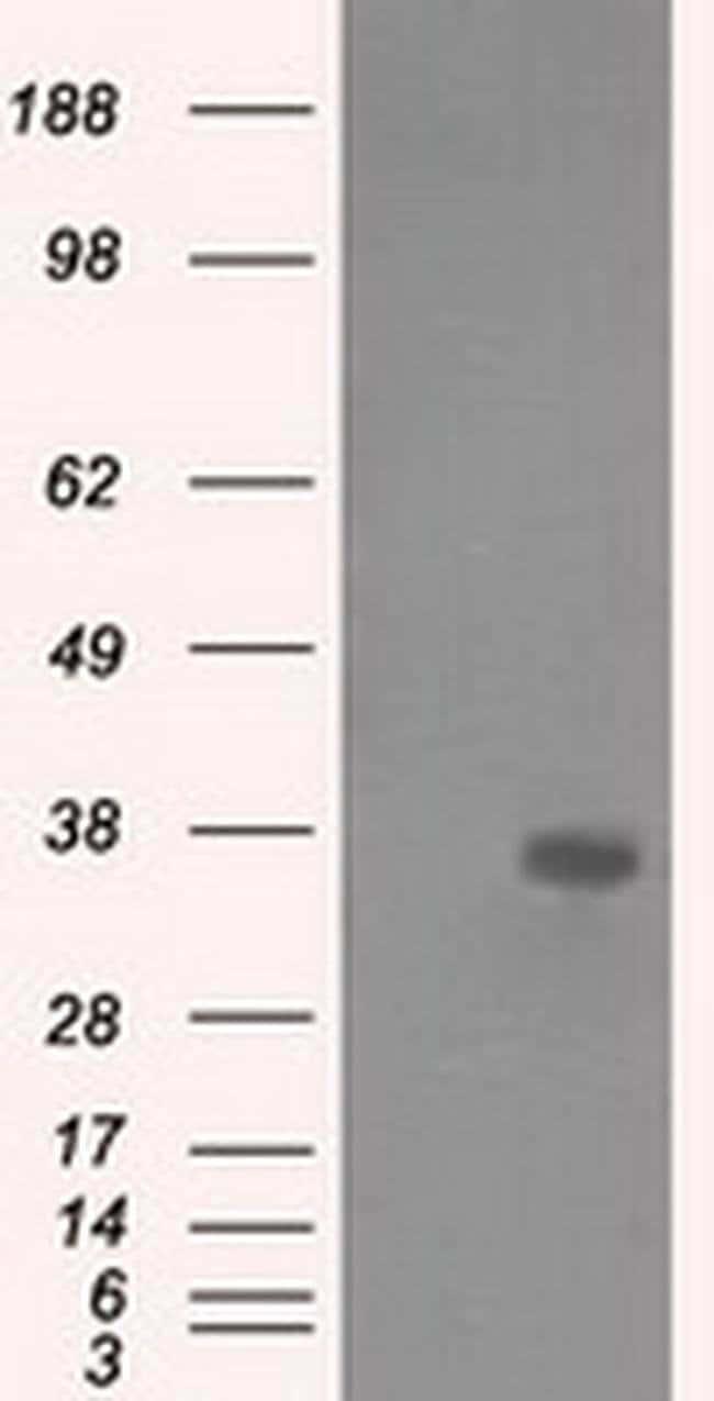 AKR1A1 Mouse anti-Human, Clone: OTI4G6, liquid, TrueMAB  100 µL; Unconjugated