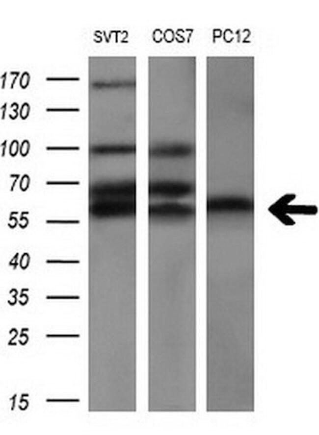 AKT2 Mouse anti-Human, Clone: OTI4H7, liquid, TrueMAB  100 µL; Unconjugated