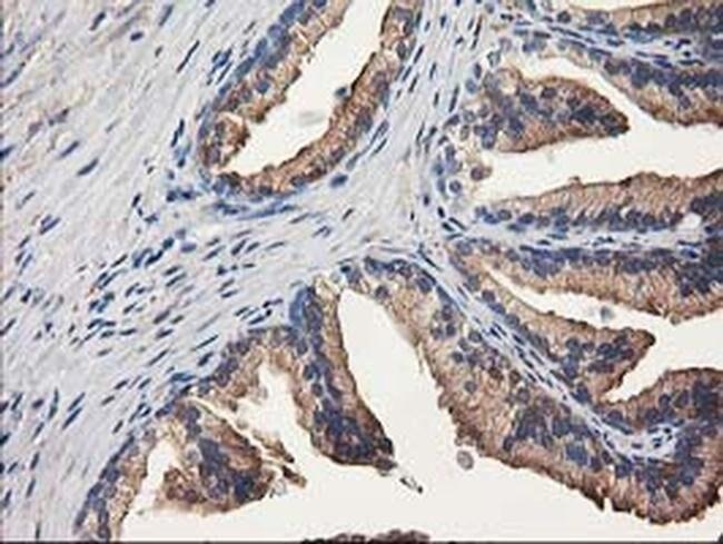 ALDH1A3 Mouse anti-Human, Clone: OTI4A3, liquid, TrueMAB  100 µL;