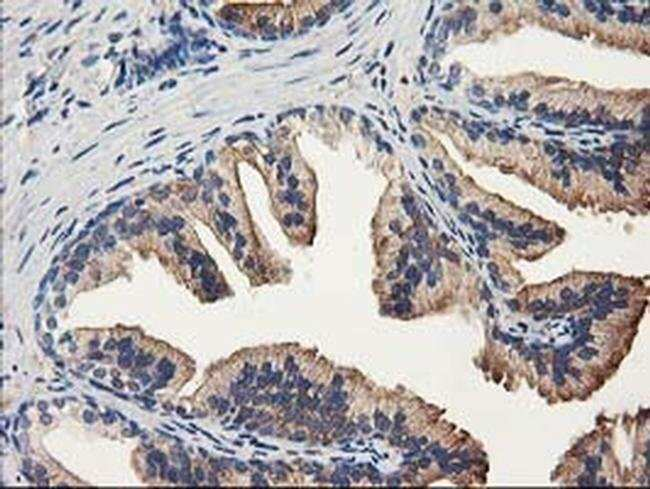 ALDH1A3 Mouse anti-Human, Clone: OTI4B4, liquid, TrueMAB  100 µL;