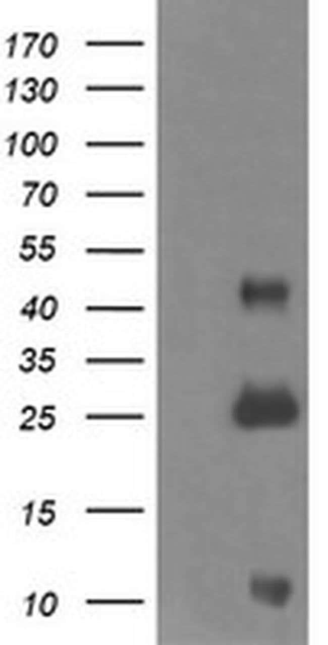 ALDH1A3 Mouse anti-Human, Clone: OTI4E8, liquid, TrueMAB  100 µL;