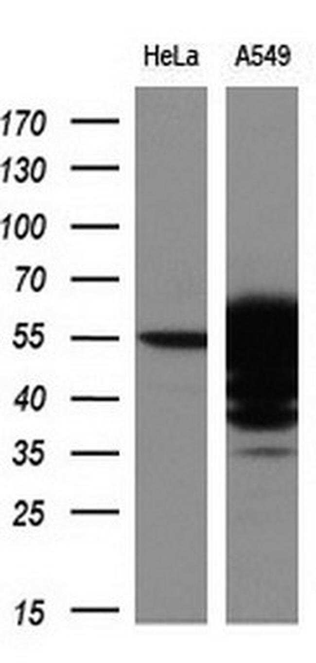 ALDH3A1 Mouse anti-Human, Clone: OTI1B6, liquid, TrueMAB  100 µL;