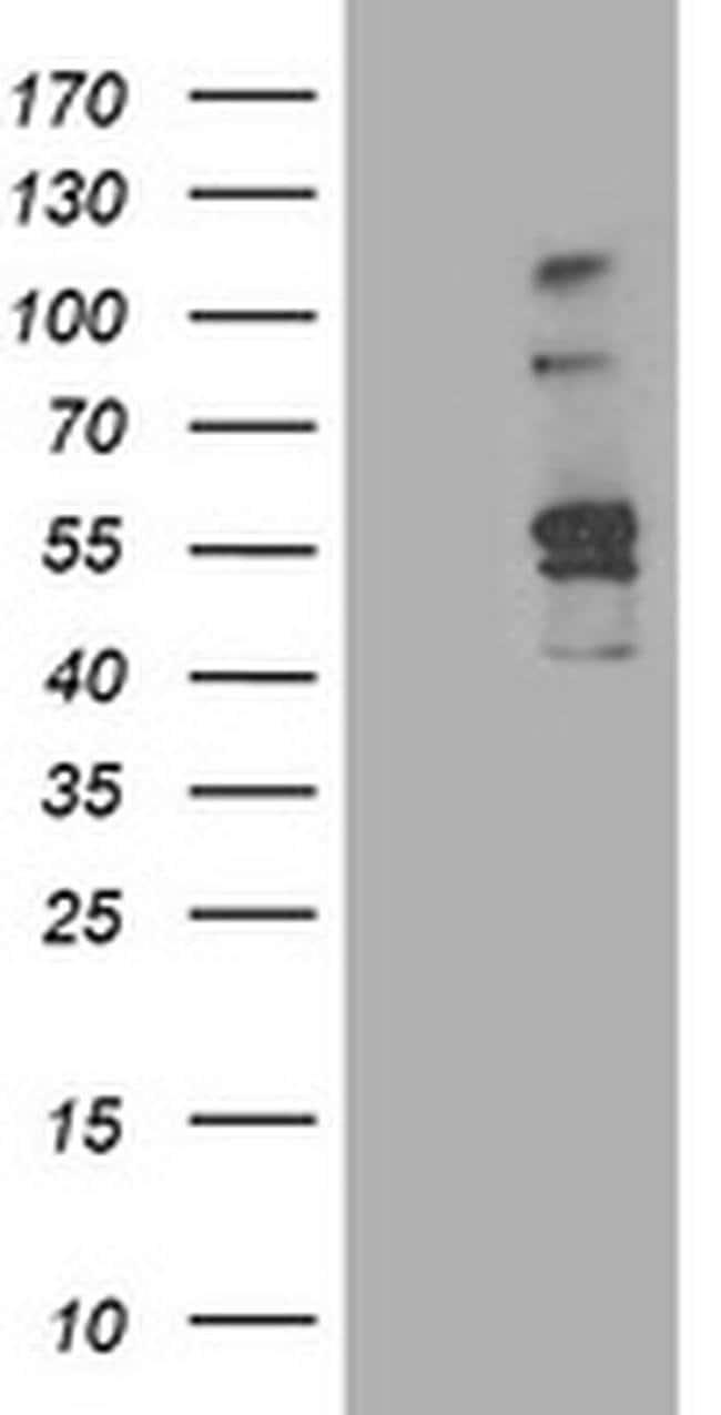 ALDH3A2 Mouse anti-Human, Clone: OTI1H10, liquid, TrueMAB  100 µL;