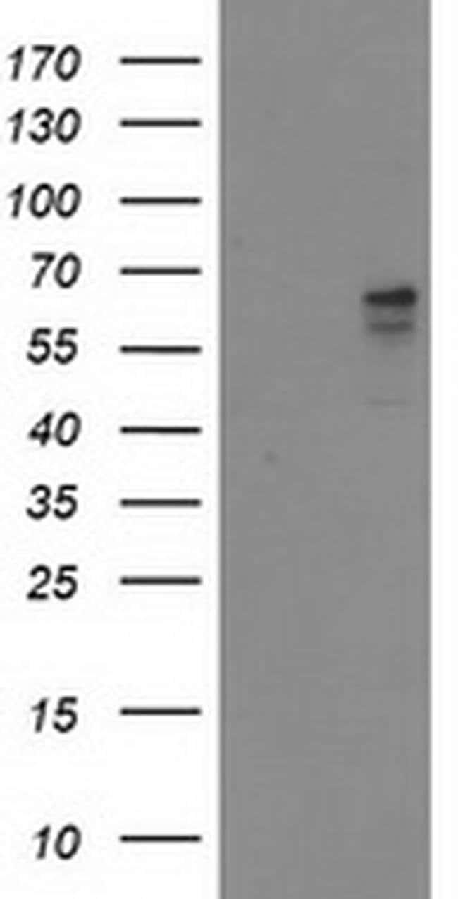 ALDH3A2 Mouse anti-Human, Clone: OTI1D1, liquid, TrueMAB  100 µL;