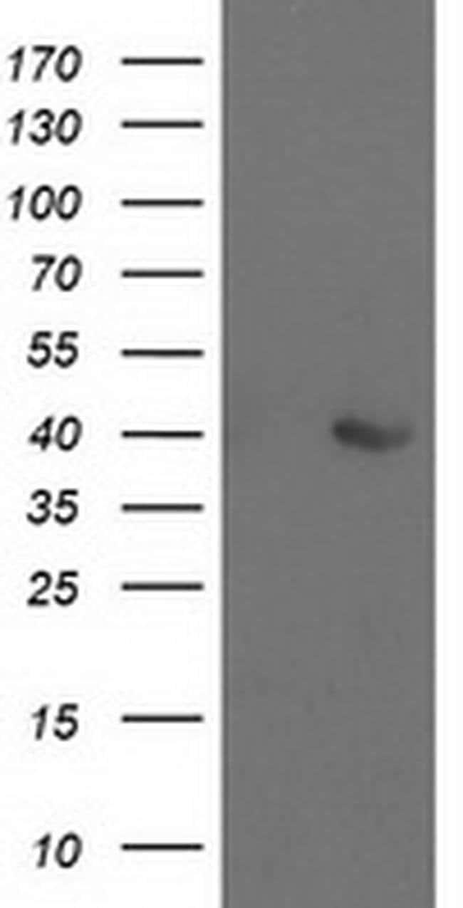 ALDOB Mouse anti-Human, Clone: OTI3E10, liquid, TrueMAB  100 µL; Unconjugated