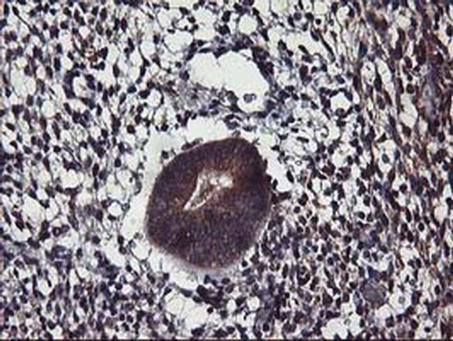 ALG2 Mouse anti-Human, Clone: OTI3C2, liquid, TrueMAB  100 µL; Unconjugated