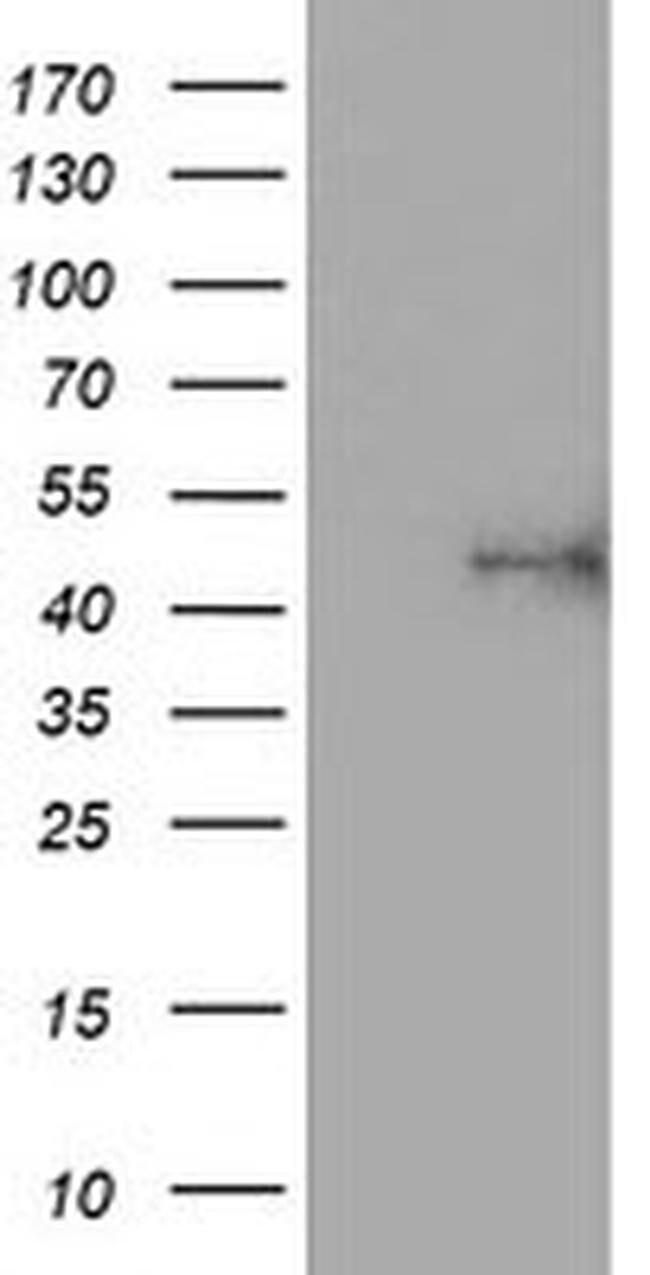 ALG2 Mouse anti-Human, Clone: OTI1C5, liquid, TrueMAB  100 µL; Unconjugated