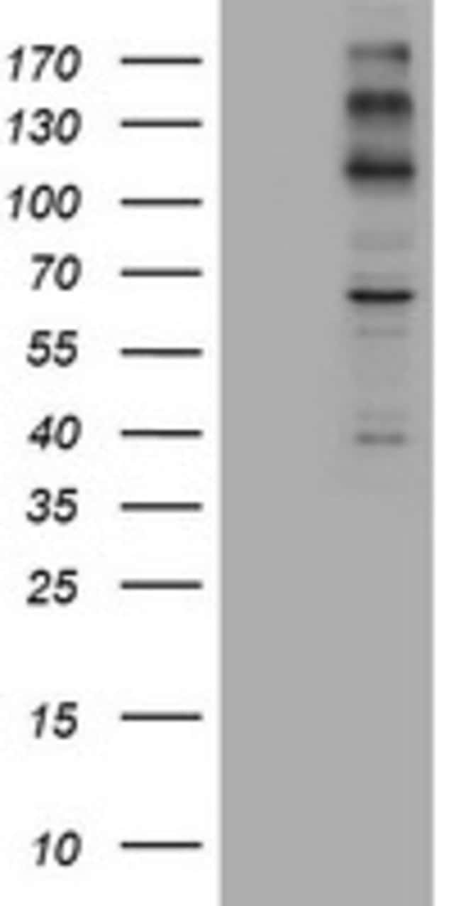 ALK Mouse anti-Human, Clone: OTI2E4, lyophilized, TrueMAB  100 µg;