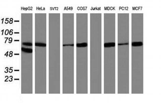 ALOX15 Mouse anti-Canine, Human, Rat, Clone: OTI3G8, liquid, TrueMAB  100