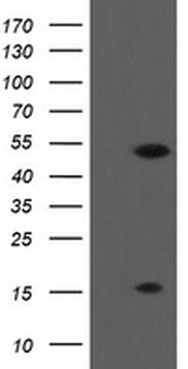 ALX4 Mouse anti-Human, Clone: OTI2F2, liquid, TrueMAB  100 µL; Unconjugated