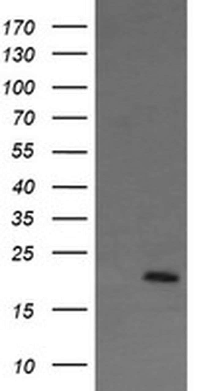 ANAPC11 Mouse anti-Human, Clone: OTI1F2, liquid, TrueMAB  100 µL;