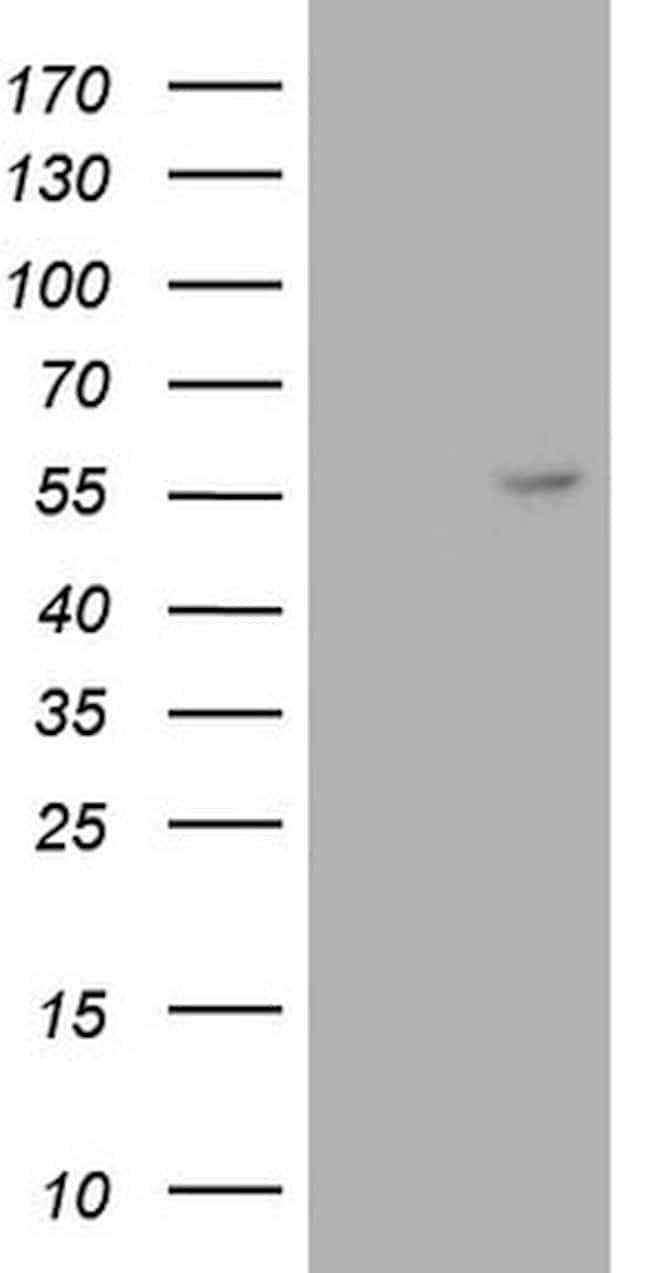ANGPT1 Mouse anti-Human, Clone: OTI8C5, lyophilized, TrueMAB  100 µg;