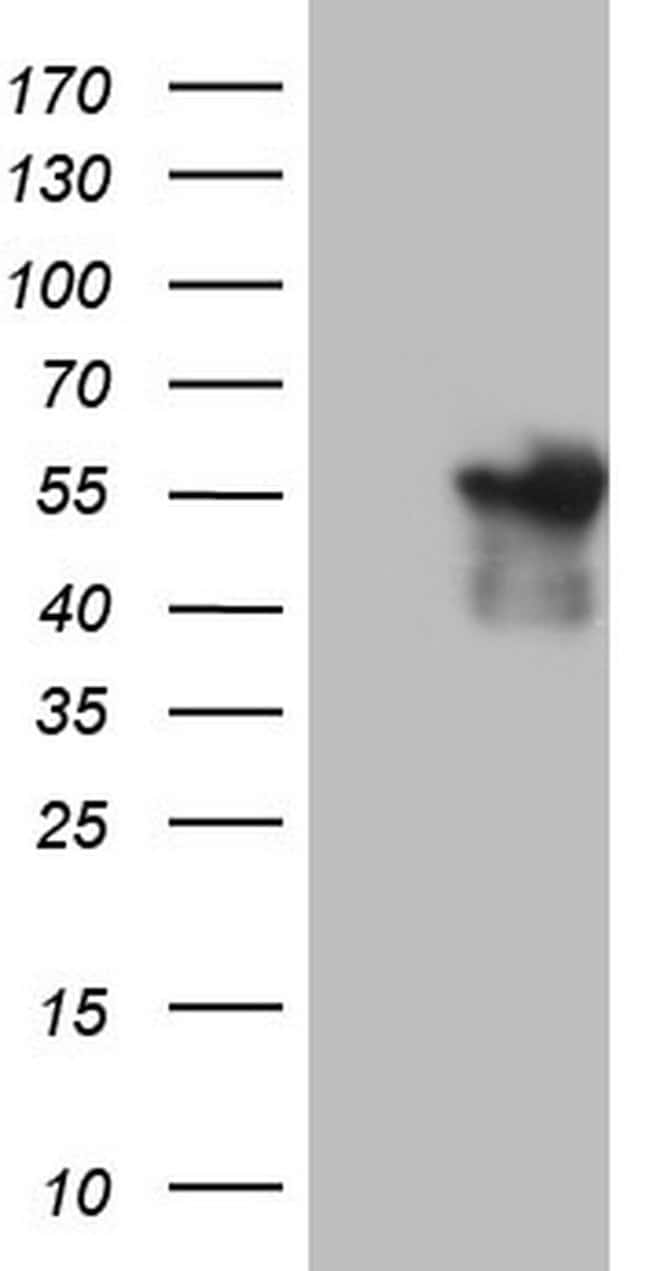 ANGPTL1 Mouse anti-Human, Clone: OTI1B2, lyophilized, TrueMAB  100 µg;