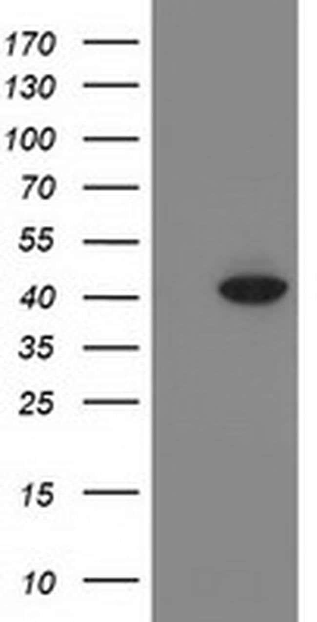 ANKRD53 Mouse anti-Human, Clone: OTI1A7, liquid, TrueMAB  100 µL;