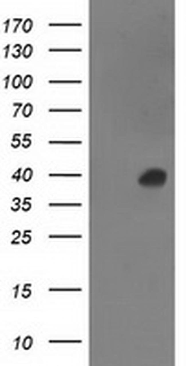 ANKRD53 Mouse anti-Human, Clone: OTI1B8, liquid, TrueMAB  100 µL;
