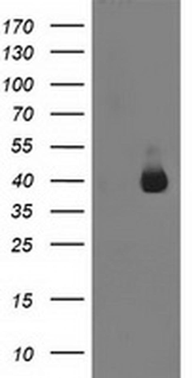 ANKRD53 Mouse anti-Human, Clone: OTI1C10, liquid, TrueMAB  100 µL;