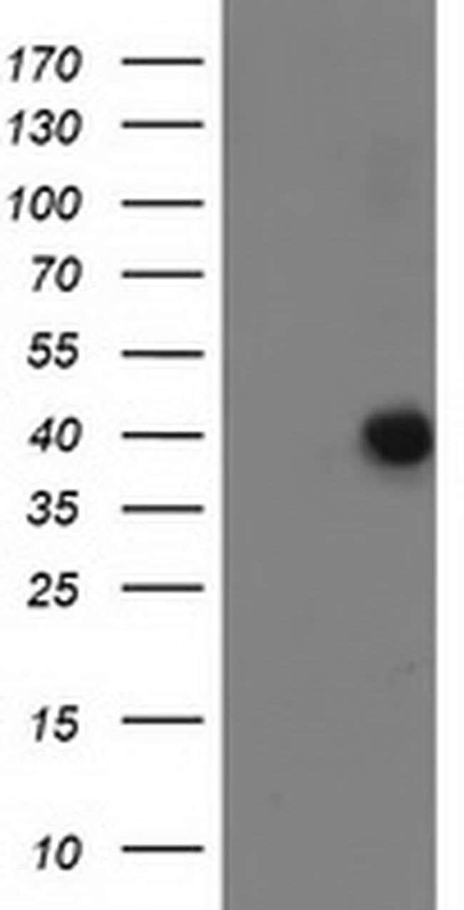 ANKRD53 Mouse anti-Human, Clone: OTI1E1, liquid, TrueMAB  100 µL;