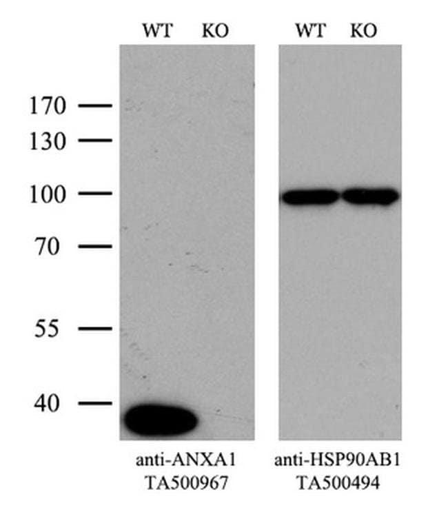ANXA1 Mouse anti-Human, Clone: OTI3A8, liquid, TrueMAB  100 µL; Unconjugated