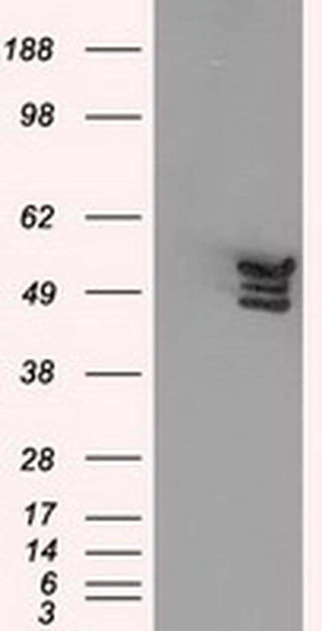ANXA11 Mouse anti-Human, Clone: OTI1C6, liquid, TrueMAB  100 µL; Unconjugated