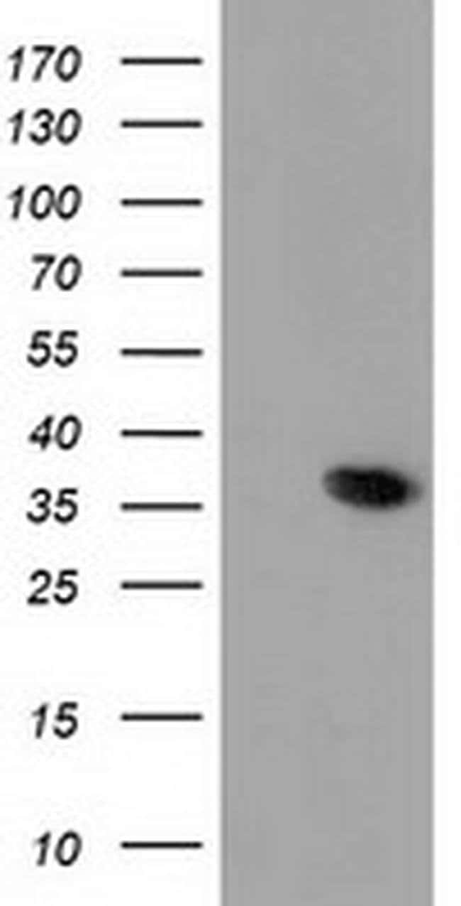 ANXA3 Mouse anti-Human, Clone: OTI1F11, liquid, TrueMAB  100 µL; Unconjugated