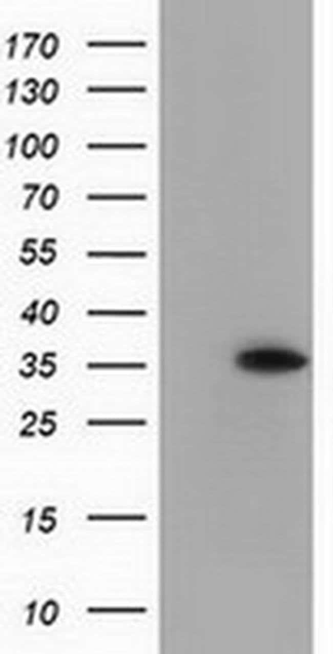 ANXA3 Mouse anti-Human, Clone: OTI8A12, liquid, TrueMAB  100 µL; Unconjugated