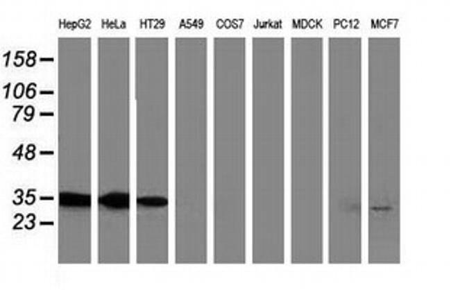 ANXA3 Mouse anti-Human, Clone: OTI5G4, liquid, TrueMAB  100 µL; Unconjugated
