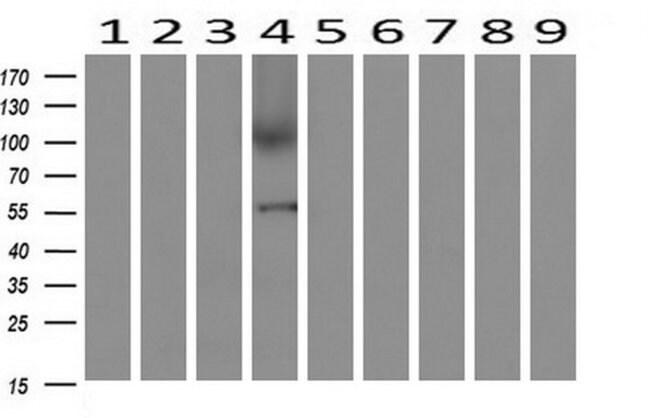 AP2M1 Mouse anti-Human, Clone: OTI1F10, liquid, TrueMAB  100 µL; Unconjugated