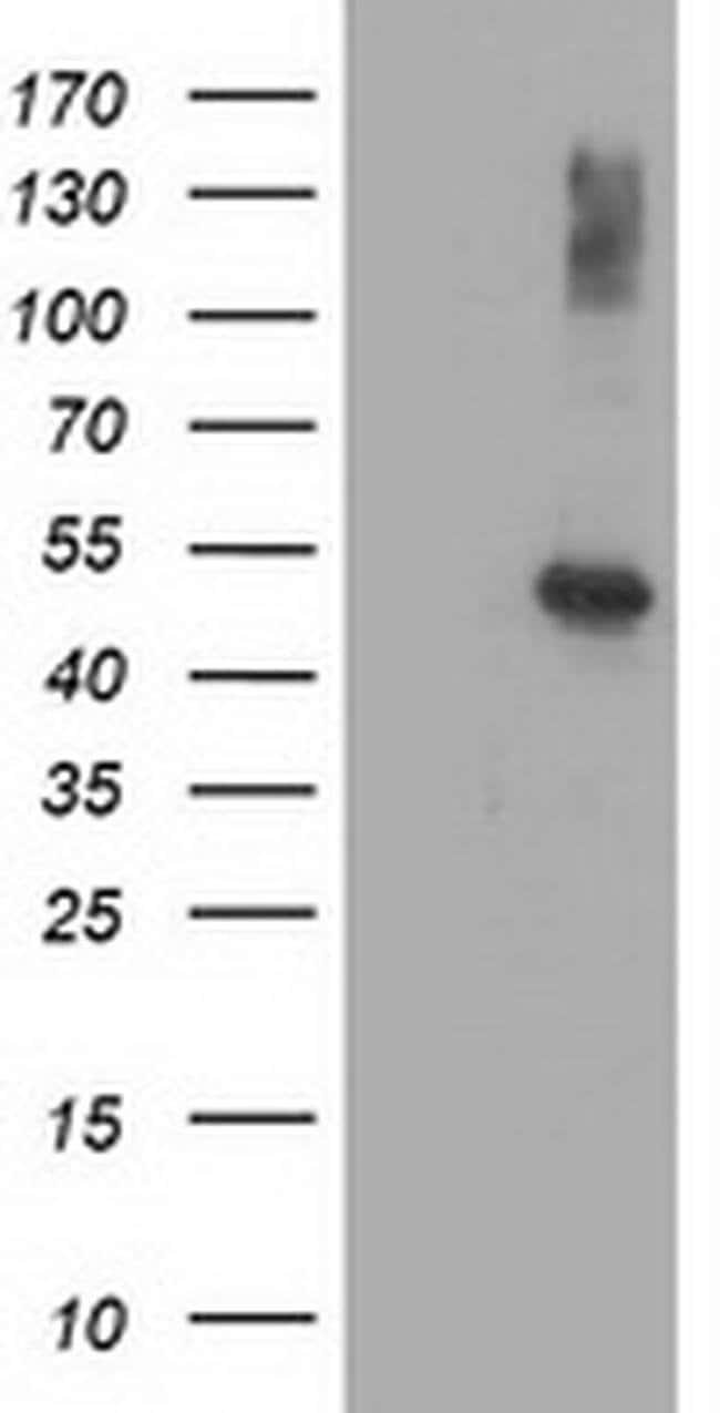 AP2M1 Mouse anti-Canine, Human, Rat, Clone: OTI 2F11, liquid, TrueMAB