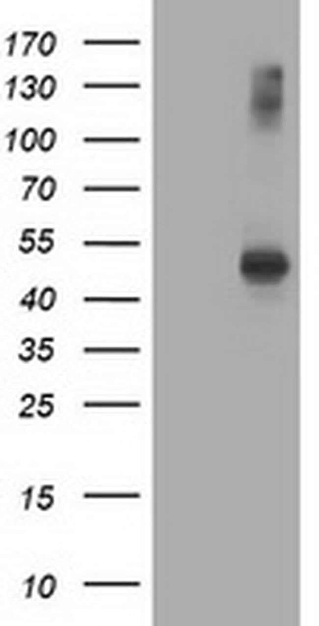 AP2M1 Mouse anti-Human, Clone: OTI2D10, liquid, TrueMAB  100 µL; Unconjugated