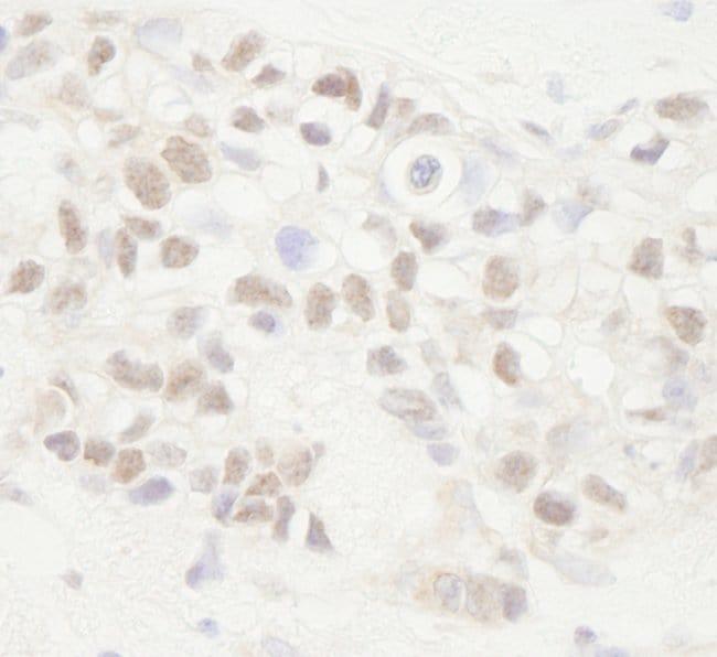 APC Rabbit anti-Human, Polyclonal, Bethyl Laboratories 100 μL; Unconjugated:Antibodies