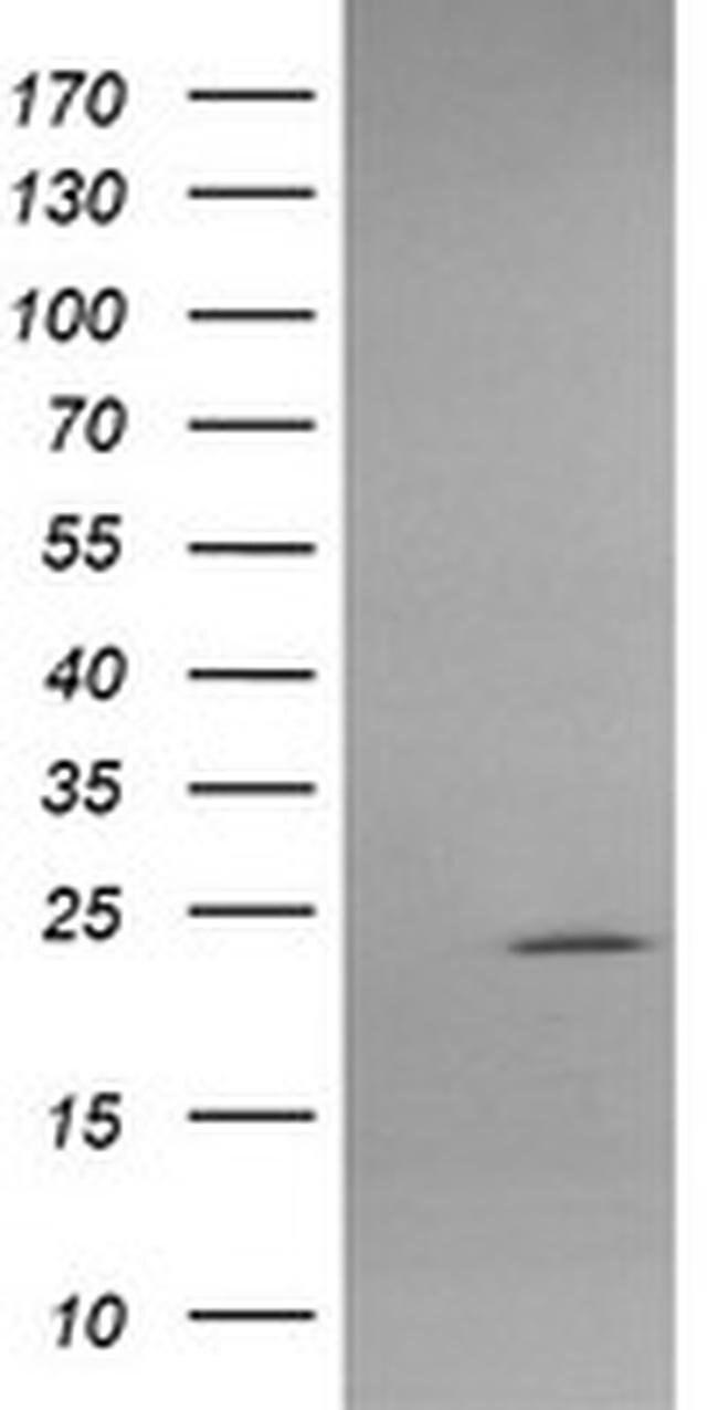 APCS Mouse anti-Human, Clone: OTI1H2, liquid, TrueMAB  100 µL; Unconjugated