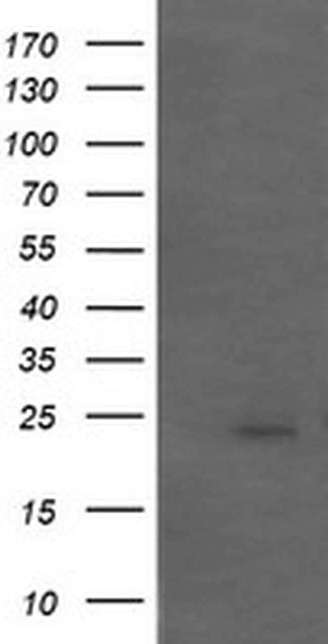 APCS Mouse anti-Human, Clone: OTI5A9, liquid, TrueMAB  100 µL; Unconjugated