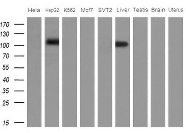 APOBR Mouse anti-Human, Clone: OTI2E6, lyophilized, TrueMAB  100 µg;