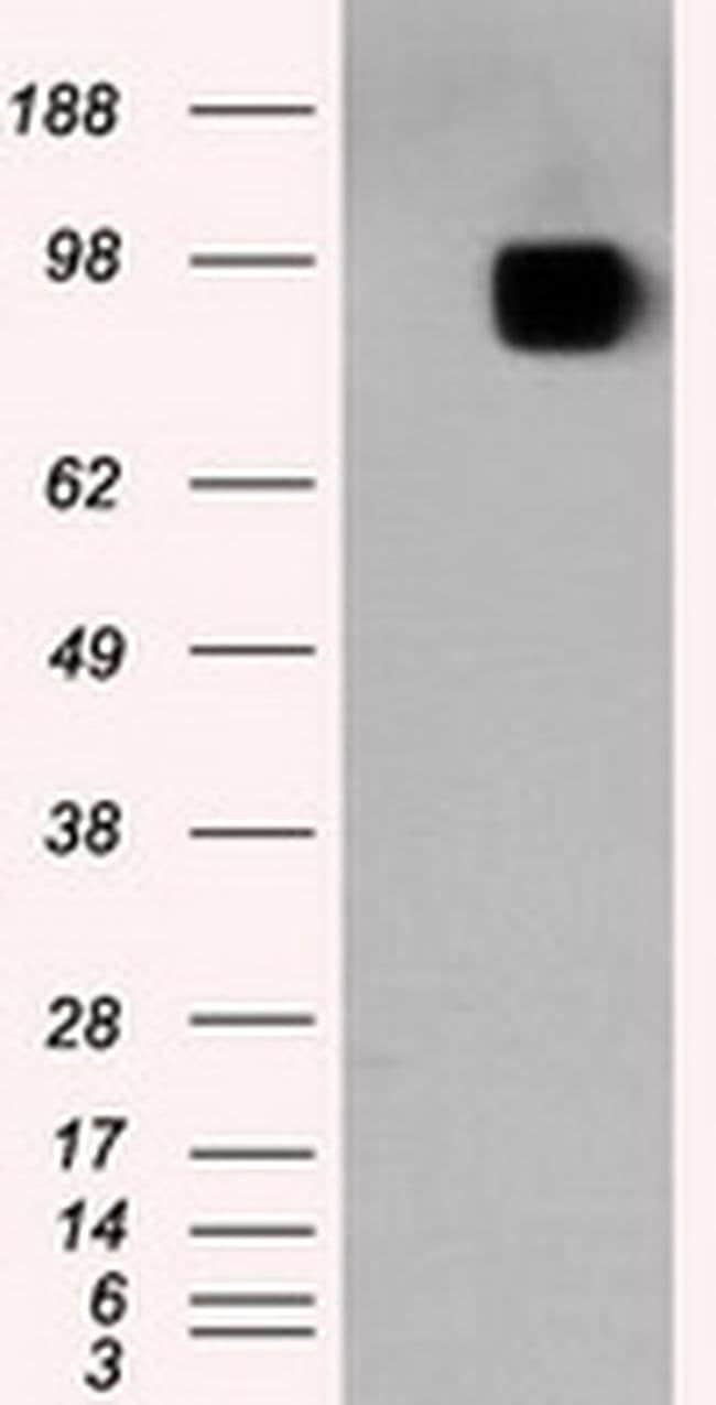 APP Mouse anti-Human, Clone: OTI7B8, liquid, TrueMAB  100 µL; Unconjugated