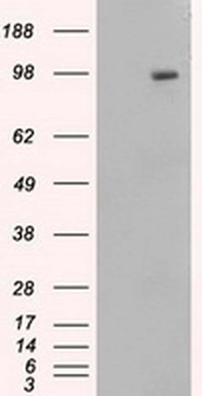 APP Mouse anti-Human, Clone: OTI6B7, liquid, TrueMAB  100 µL; Unconjugated