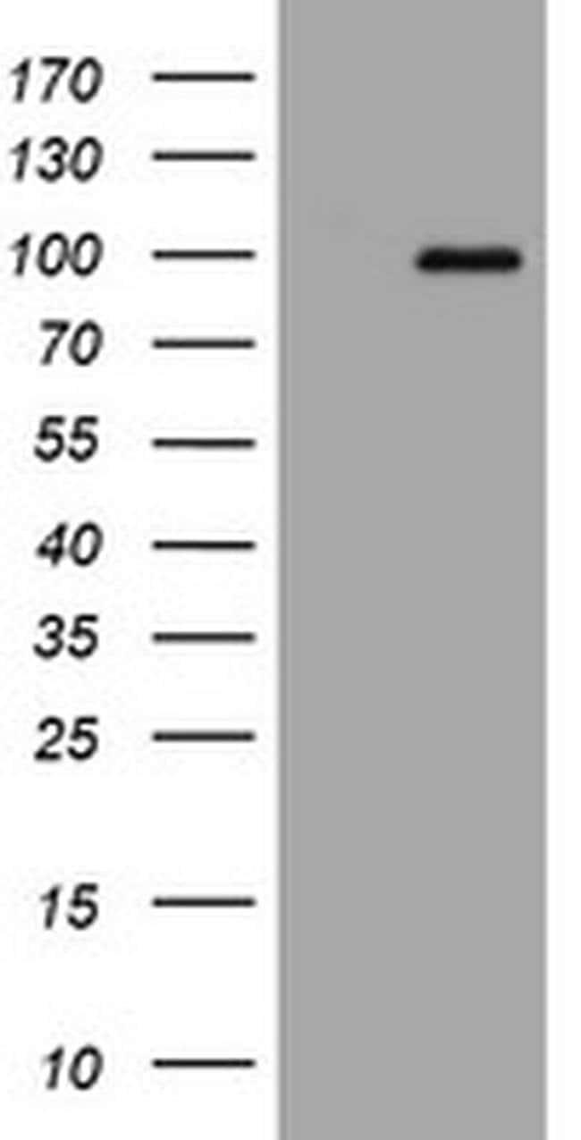 APP Mouse anti-Human, Clone: OTI4C9, liquid, TrueMAB  100 µL; Unconjugated