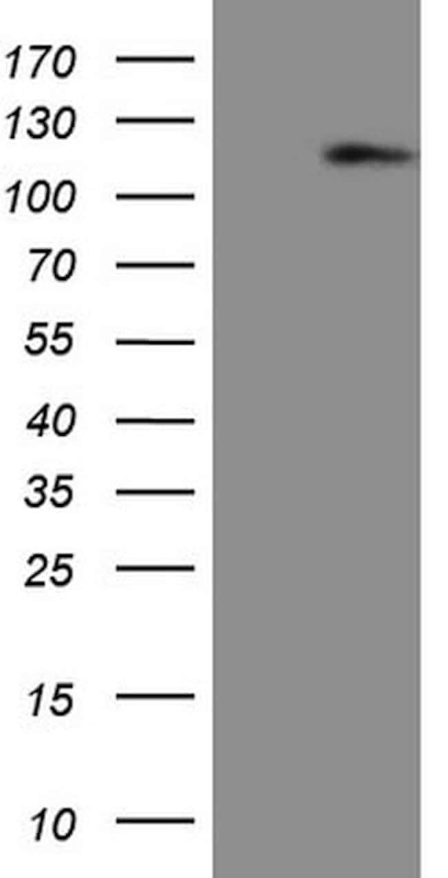 AR Mouse anti-Human, Clone: OTI2H2, lyophilized, TrueMAB  100 µg;