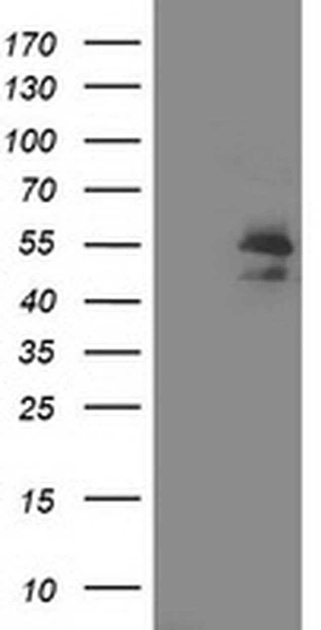 ARFGAP1 Mouse anti-Human, Clone: OTI 2C10, liquid, TrueMAB  100 µL;